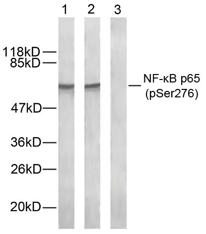 NFκB-p65(Phospho-Ser276) Antibody - Absci