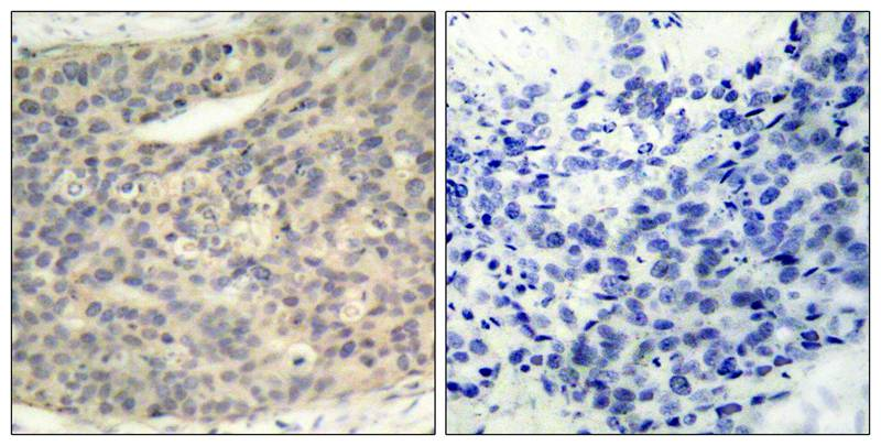 LIMK1(Phospho-Thr508) Antibody - Absci