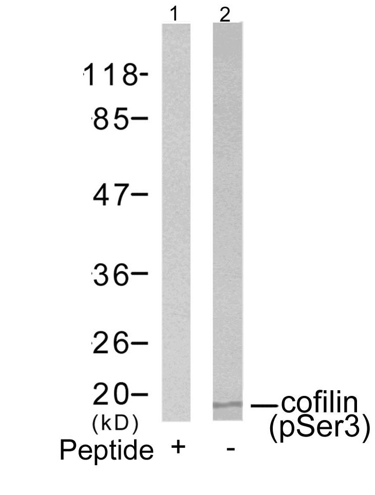 cofilin(Phospho-Ser3) Antibody - Absci
