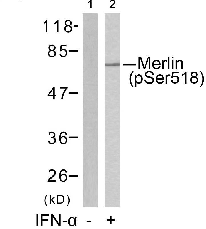 Merlin(Phospho-Ser518) Antibody - Absci