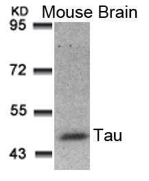 Tau(Ab-181) Antibody - Absci
