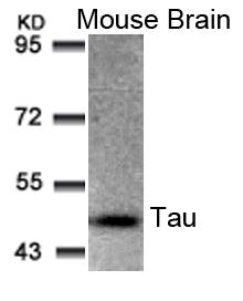 Tau(Ab-205) Antibody - Absci