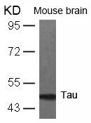 Tau(Ab-231) Antibody - Absci