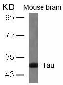 Tau(Ab-404) Antibody - Absci