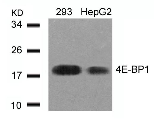 4E-BP1(Ab-46) Antibody - Absci
