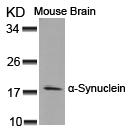 a-Synuclein(Ab-125) Antibody - Absci