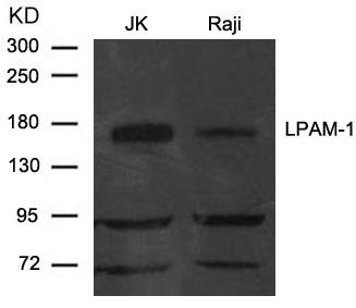 LPAM-1(Integrin a4, CD49d) Antibody - Absci