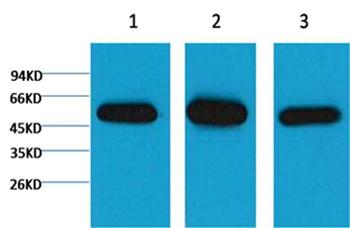 β I tubulin Mouse Monoclonal Antibody - Absci
