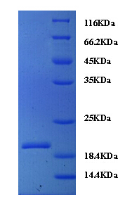Recombinant Normal mucosa of esophagus-specific gene 1 protein - Absci