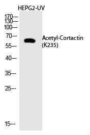 Cortactin (Acetyl-Lys235) Polyclonal Antibody - Absci
