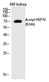 HSP70 (Acetyl-Lys246) Polyclonal Antibody - Absci