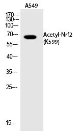 Nrf2 (Acetyl-Lys599) Polyclonal Antibody - Absci