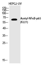 NFκB-p65 (Acetyl-Lys221) Polyclonal Antibody - Absci