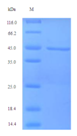 Recombinant Human Zona pellucida sperm-binding protein 3 - Absci