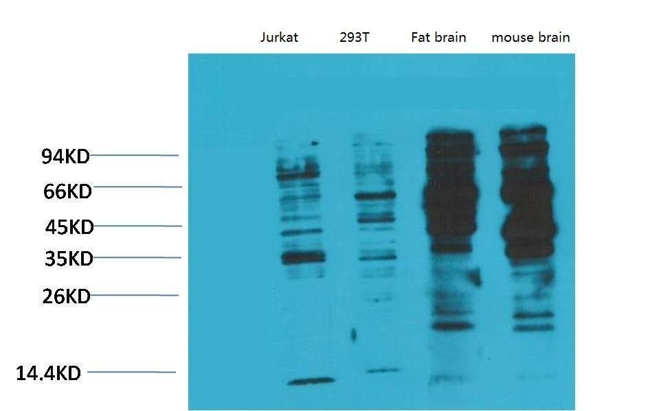 Phosphotyrosine Monoclonal antibody(2C1) - Absci