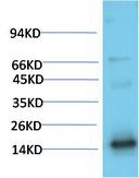 TTR Mouse Monoclonal Antibody(1D7) - Absci