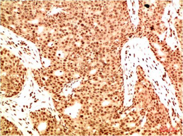 Acetyl NF kB P65 - Absci