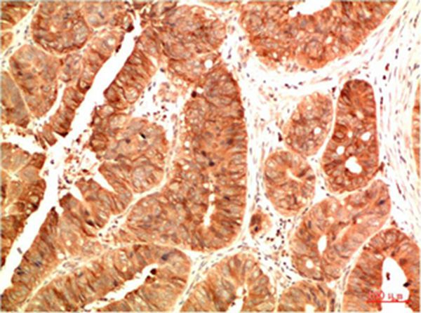 Acetyl P53(K382) Mouse Monoclonal Antibody(15F4) - Absci