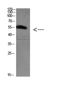 FoxO4 (Acetyl Lys189) Polyclonal Antibody - Absci