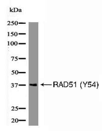 RAD51 (Phospho-Tyr54) Antibody - Absci