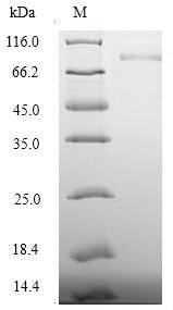 Recombinant Human Desmoglein-3(DSG3) ,partial - Absci