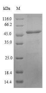Recombinant Human Antigen KI-67(MKI67),partial - Absci