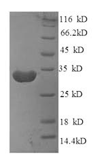 Recombinant Mouse B-lymphocyte antigen CD20(Ms4a1) ,partial - Absci