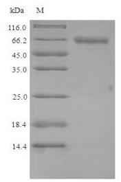 Recombinant Mouse Putative phospholipase B-like 2(Plbd2) - Absci