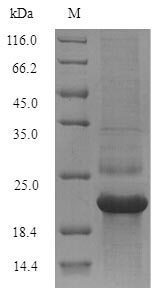 Recombinant Hepatitis C virus genotype 1b Genome polyprotein,partial