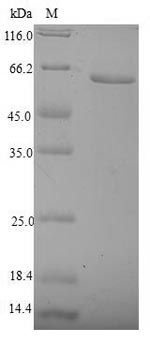 Recombinant Human Nuclear receptor subfamily 2 group F member 6(NR2F6)