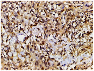 Ephrin-B2(Ab-330) Antibody - Absci