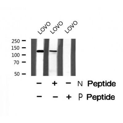 PDE3A (Phospho-Ser312) Antibody - Absci