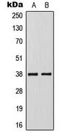 KLF1/5/7 Antibody - Absci
